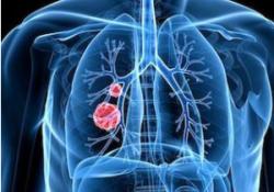 "Br J Cancer:安<font color=""red"">罗</font>替<font color=""red"">尼</font>(Anlotinib):小细胞肺癌患者的三线或后续治疗药物"