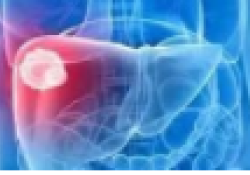"JNCI:近20年来肝癌的死亡率变化<font color=""red"">趋势</font>"