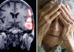 """<font color=""""red"""">Lancet</font> Neuro:同样都是中风,为什么他傻了而她没有?"""