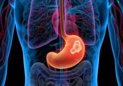 """Br J Cancer:<font color=""""red"""">二</font><font color=""""red"""">甲</font><font color=""""red"""">双胍</font>可改善胃腺癌患者的预后"""