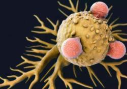 "DigDisSci:<font color=""red"">中性</font>粒<font color=""red"">细胞</font>-淋巴<font color=""red"">细胞</font>比率较高与肝<font color=""red"">细胞</font>癌患者死亡率增加相关"