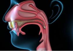 "Nat Commun:综合药物基因组学揭示鼻咽癌<font color=""red"">亚型</font>特异性治疗反应"