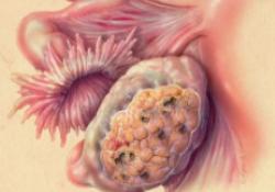 "JCO:复发性卵巢癌可否从二次减瘤术时卡铂<font color=""red"">腹腔</font>热灌注<font color=""red"">化疗</font>中获益?"