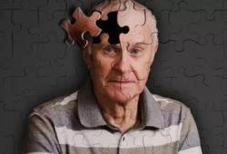 Alzheimer's Research & Therapy:衰老相关血源因子可能是临床前AD认知能力的生物标志物