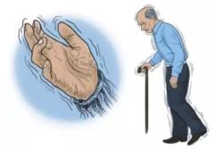 Nat Commun:X连锁肌张力障碍-帕金森病中年龄相关遗传修饰因子的鉴定
