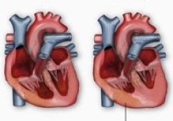 "JACC:<font color=""red"">梗阻</font>性肥厚型心肌病患者的心肌组织病理与临床特征的相关性"