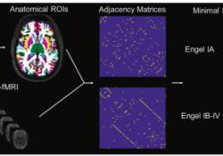 "Radiology:用功能<font color=""red"">MRI</font>的剖析难治性TLE患者的手术疗效"
