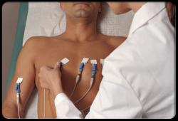 Circ-Heart Fail:心衰相关的心源性休克患者急性机械循环支持相关的临床结局分析