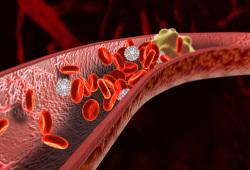 DigDisSci: 接受持续抗栓治疗的患者在接受胃肠道内镜后相关出血的风险较低