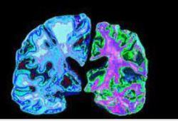 Alzherimer's&Dementia | 临床大发现:BBB水交换率有望预测老年痴呆的发生!