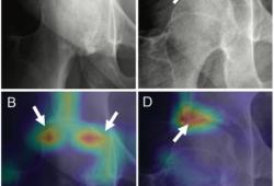 Radiology:人工智能在髋关节骨关节炎影像学特征严重程度分级中的应用
