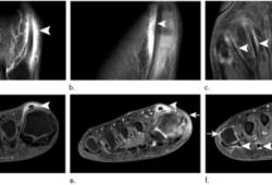 Radiology:从解剖学和影像学的角度看跖趾关节类风湿性关节炎和腱鞘炎