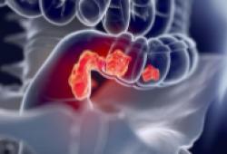 Lancet Oncol:曲妥珠单抗德鲁替康用于HER2阳性转移性结直肠癌的疗效和安全性