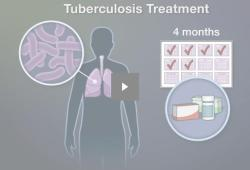 NEJM:利福喷丁-莫西沙星4个月治疗方案用于结核病的治疗