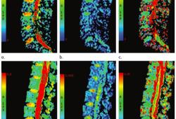Radiology:IVIM序列在新诊断AML中的预后价值