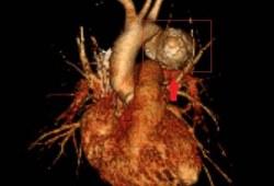 入职体检惊现胸部大动脉瘤,定时炸弹在十年前已经埋下!
