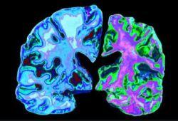 Neurology:老年痴呆发病年龄与方式与临床表现密切相关!