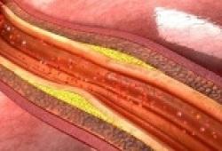 Cardiovasc Diabetol:血糖变异性与颈动脉的内膜-中膜厚度和组织特征的相关性