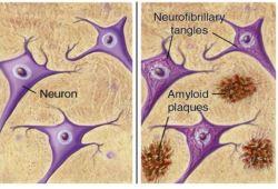 NEJM:新型药物多奈单抗有望改善早期老年痴呆