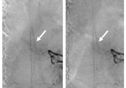 Radiology:辐射防护应做到更实用:脊柱数字减影血管造影中ASG的去除