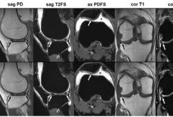 Radiology:这一影像学技术,使5分钟膝关节MRI成为可能!