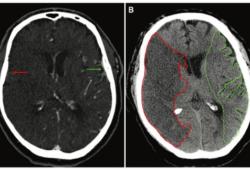 Radiology:旧技术的新应用:从平扫CT看AIS患者的预后