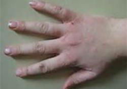Brit J Cancer:运动、握力和久坐行为与恶性黑色素瘤发病率之间的关系