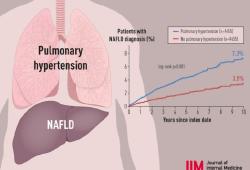 J INTERN MED:肺动脉高压与NAFLD发病率增加相关