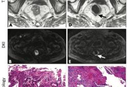 Radiology:磁共振扩散峰度成像与人工智能的结合:预测直肠癌对新辅助放化疗的反应