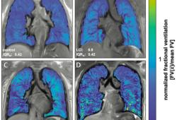 Radiology:三维UTE MRI序列在囊性肺纤维化肺功能成像中的应用