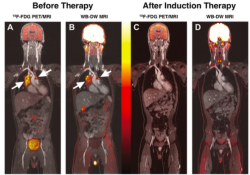 """Radiology:对于肿瘤患儿,不要总想着做<font color=""""red"""">CT</font>!"""