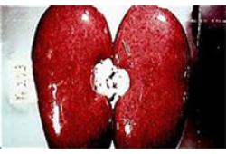 JAHA:肾脏疾病与COVID-19患者结局之间的关联