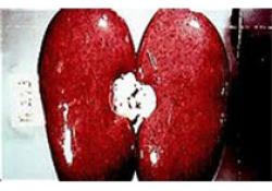 "JAHA:<font color=""red"">肾脏</font>疾病与COVID-19患者结局之间的关联"