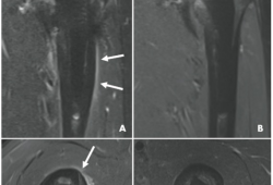Radiology:有了这个技术,使MRI诊断人工髋关节周围感染成为可能!