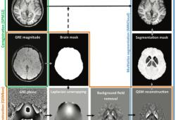 Radiology:哪些MRI表现与Wilson病的临床严重程度有关?