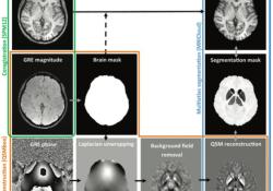 "Radiology:哪些<font color=""red"">MRI</font>表现与Wilson病的临床严重程度有关?"