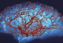 PNAS:磷脂酰肌醇4,5-二磷酸耗尽可能是脑小血管病的普遍特征