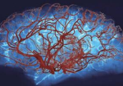 """PNAS:磷脂酰肌醇4,5-二磷酸耗尽可能是脑<font color=""""red"""">小</font>血管<font color=""""red"""">病</font>的普遍特征"""
