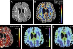 Neurology:基线血脑屏障渗漏可预测cSVD患者白质高信号病灶周围微结构组织损伤