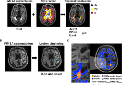 Stroke:量化白质信号异常,探索临床疾病机制