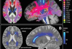 Radiology:局部网络效率介导白质高信号病灶体积对认知功能的不利影响