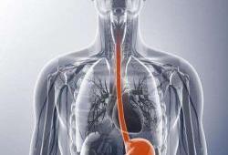 JNCCN:免疫治疗相关食管炎的临床特征、治疗反应和预后