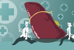 Gastroenterology:外周血ATP7B肽检测在肝豆状核变性诊断中的价值