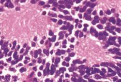 JCO:ALK遗传变异在高危型神经母细胞瘤中的发生率及对预后的影响