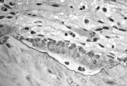 Atherosclerosis:腹主动脉钙化提前预警跌倒风险