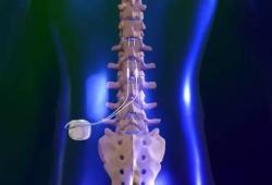 NEUROMODULATION:10kHz脊髓刺激治疗难治性慢性偏头痛的安全性和有效性:一项前瞻性长期开放标记研究