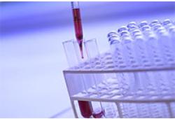 Crit Care:COVID-19患者血清尿酸、疾病严重程度与结局的关系