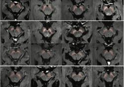 "Radiology:<font color=""red"">原发性</font>和晚期帕金森病的3TMR黑质容量测定"
