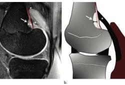 Radiology:在膝关节MRI上看到这个征象,不要再慌张!