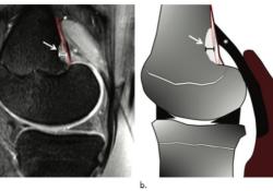"Radiology:在膝关节<font color=""red"">MRI</font>上看到这个征象,不要再慌张!"